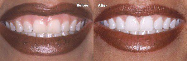 zoom teeth whitening near me vienna