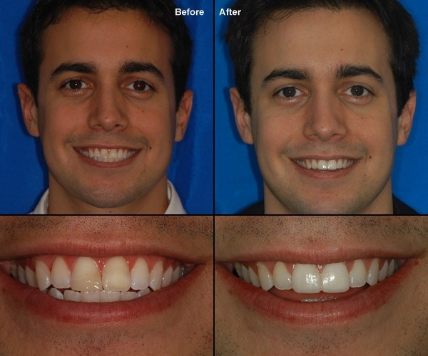 teeth bonding vienna