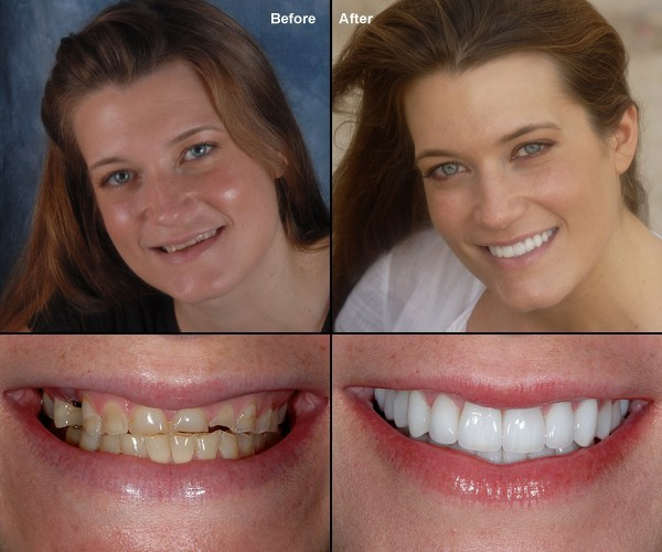 tooth replacement vienna va